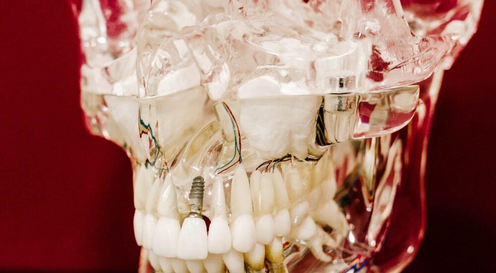Ile kosztuje wstawienie zęba 1? – Najważniejsze informacje